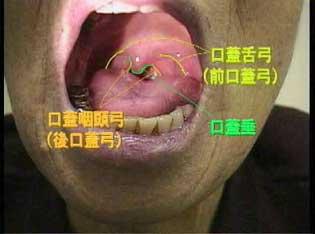 3:咽頭所見